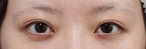 全切開、眼瞼下垂(挙筋前転術) 3ヶ月後のBefore写真