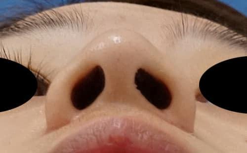 鼻尖縮小、I型プロテーゼ、鼻翼縮小(内側+外側) 3ヶ月後 下から