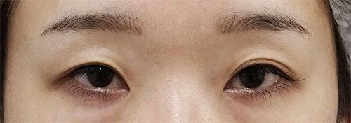 切らない眼瞼下垂プレミアム(切らない眼瞼下垂+二重埋没法) 手術前