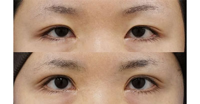 全切開、挙筋前転術(眼瞼下垂手術) 1ヶ月後、3ヶ月後
