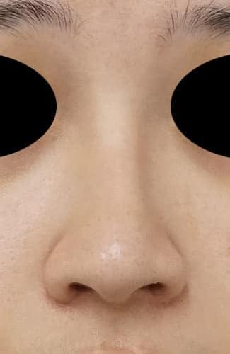 鼻尖縮小、I型プロテーゼ、鼻翼縮小(内側+外側) 3ヶ月後 正面