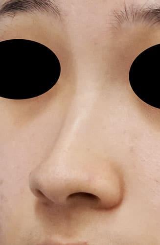 鼻尖縮小、I型プロテーゼ、鼻翼縮小(内側+外側) 手術前 左斜め