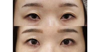 切らない眼瞼下垂プレミアム 3ヶ月後