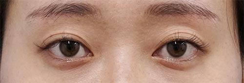 切らないデカ目2点セット(切らない眼瞼下垂+切らないタレ目) 3ヶ月後のBefore写真