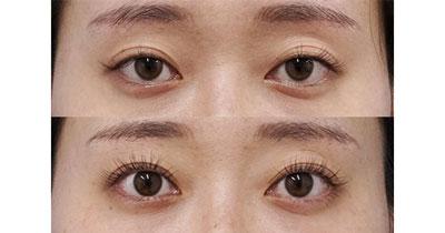 切らないデカ目2点セット(切らない眼瞼下垂+切らないタレ目) 3ヶ月後