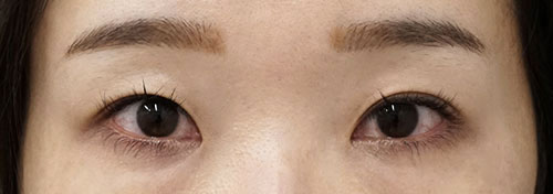 切らない眼瞼下垂プレミアム(切らない眼瞼下垂+二重埋没法) 3ヶ月後
