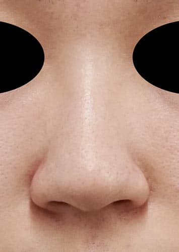 鼻尖縮小(3D法)、ストラット 3ヶ月後 正面のBefore写真