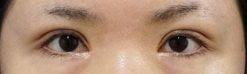 全切開、挙筋前転術(眼瞼下垂手術) 1ヶ月後のAfterの写真