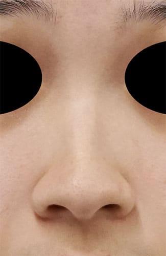 鼻尖縮小、I型プロテーゼ、鼻翼縮小(内側+外側) 手術前 正面