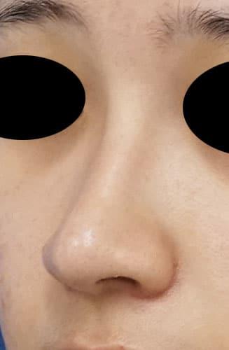 鼻尖縮小、I型プロテーゼ、鼻翼縮小(内側+外側) 3ヶ月後 左斜め