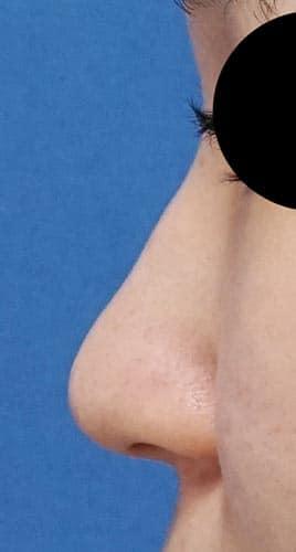 鼻尖縮小(3D法)、ストラット 3ヶ月後 左側面のBefore写真