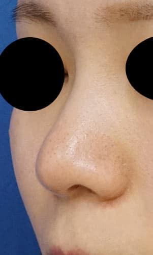 鼻尖縮小、軟骨移植、ストラット 3ヶ月後 左斜めのAfterの写真