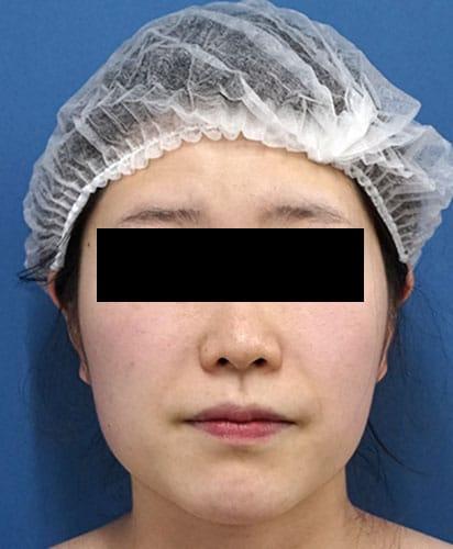 脂肪溶解注射(カベリン) 3ヶ月後のBefore写真