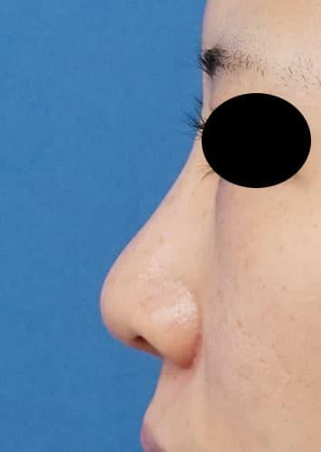 鼻翼縮小(内側+外側)、鼻尖縮小、軟骨移植 1ヶ月後 左側面