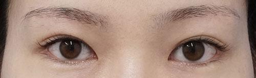 目の上たるみ取り(眉下切開) 6ヶ月後のAfterの写真