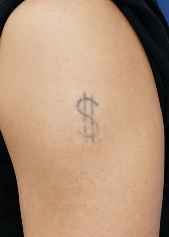 ピコレーザー(刺青除去) 2か月後のBefore写真