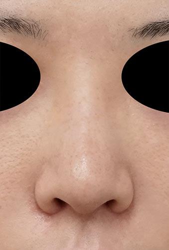 鼻翼縮小(内側+外側)、鼻尖縮小、軟骨移植 1ヶ月後 正面
