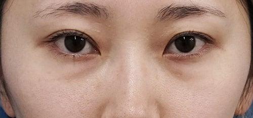 下眼瞼下制(切るタレ目)、目の下脂肪とり 1ヶ月後のBefore写真