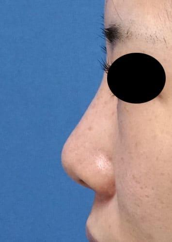鼻翼縮小(内側+外側)、鼻尖縮小、軟骨移植 手術前 左側面