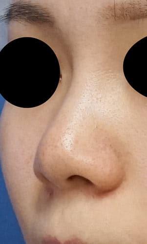 鼻尖縮小、軟骨移植、ストラット 3ヶ月後 左斜めのBefore写真