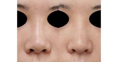 鼻翼縮小(内側+外側)、鼻尖縮小、軟骨移植 1ヶ月後