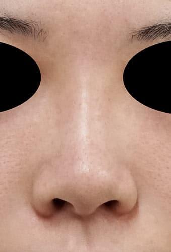 鼻翼縮小(内側+外側)、鼻尖縮小、軟骨移植 手術前 正面
