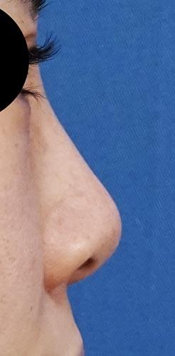 鼻翼縮小(内側+外側)、鼻尖縮小、軟骨移植 手術前 右側面