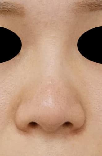 鼻尖縮小、軟骨移植、ストラット 3ヶ月後 正面のAfterの写真
