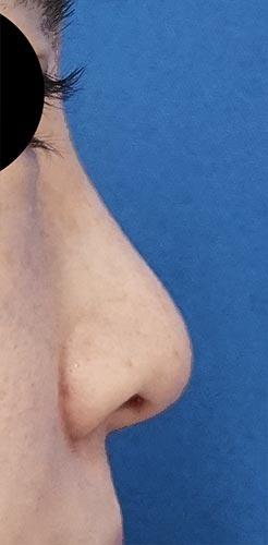 鼻翼縮小(内側+外側)、鼻尖縮小、軟骨移植 1ヶ月後 右側面