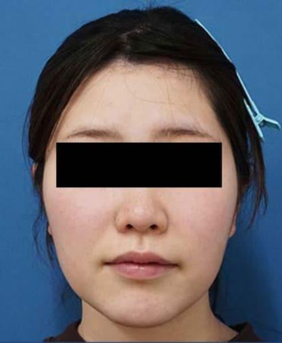 脂肪溶解注射(カベリン) 3ヶ月後のAfterの写真