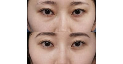 下眼瞼下制(切るタレ目)、目の下脂肪とり 1ヶ月後