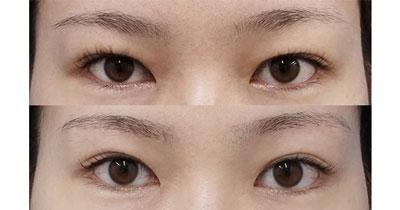 目の上たるみ取り(眉下切開) 6ヶ月後