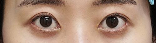 目頭切開Z形成、目尻切開 3ヶ月後のAfterの写真