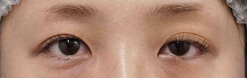 切らない眼瞼下垂 1ヶ月後のBefore写真