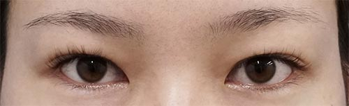 目の上たるみ取り(眉下切開) 6ヶ月後のBefore写真