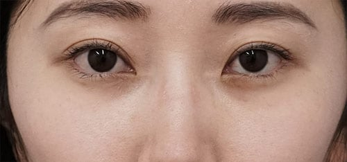 下眼瞼下制(切るタレ目)、目の下脂肪とり 1ヶ月後のAfterの写真