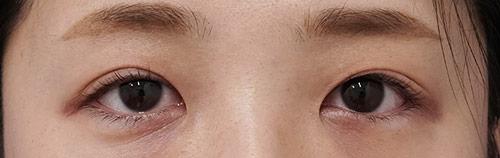 切らない眼瞼下垂 1ヶ月後のAfterの写真