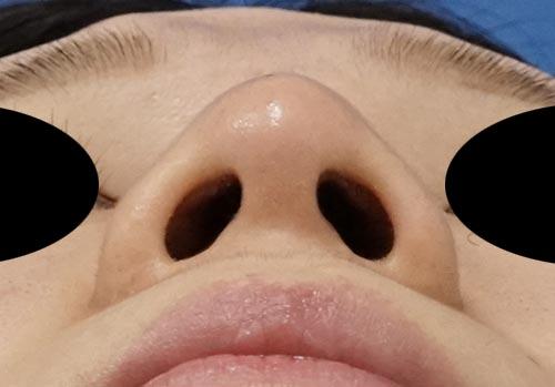 鼻尖縮小、軟骨移植、ストラット 3ヶ月後 下からのAfterの写真