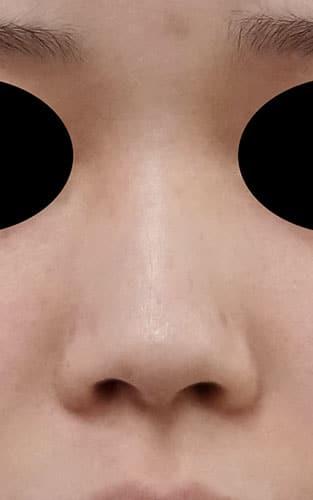 鼻尖縮小、鼻中隔延長、I型プロテーゼ 手術前 正面