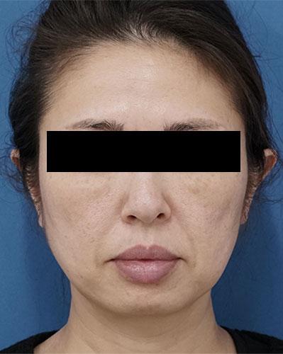 目の下脂肪取り、コンデンス脂肪注入(目の下、ほうれい線、口角) 3ヶ月後のAfterの写真