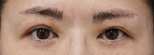 眉下切開 3ヶ月後のAfterの写真