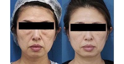 目の下脂肪取り、コンデンス脂肪注入(目の下、ほうれい線、口角) 3ヶ月後