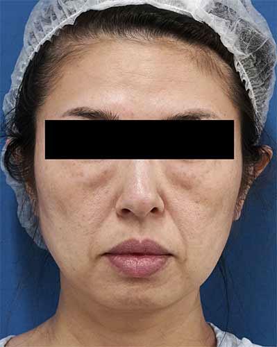 目の下脂肪取り、コンデンス脂肪注入(目の下、ほうれい線、口角) 3ヶ月後のBefore写真