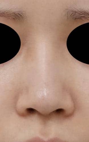鼻尖縮小、鼻中隔延長、I型プロテーゼ 4ヶ月後 正面像