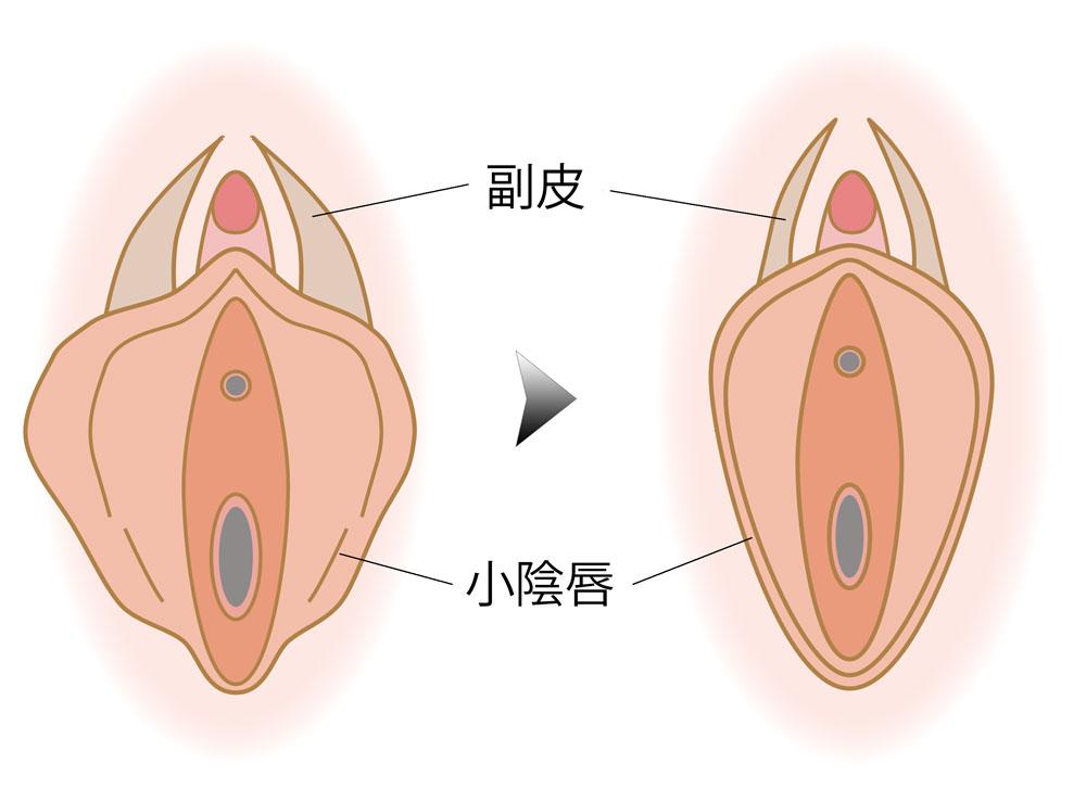 小陰唇縮小+副皮切除した場合