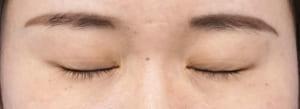 二重術(ビーズ法)症例写真 1年後、閉眼