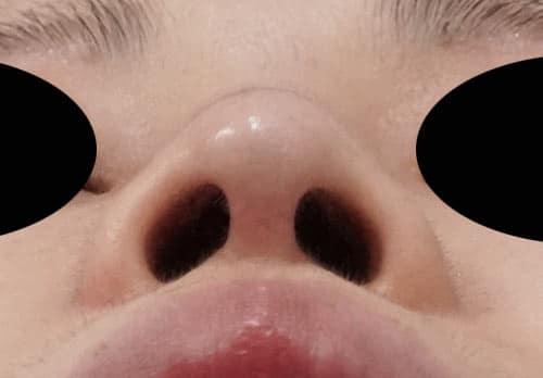 鼻尖縮小、鼻中隔延長、I型プロテーゼ 4ヶ月後 下から