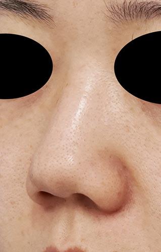 鼻尖縮小、鼻中隔延長、鼻柱基部下降、I型プロテーゼ 3ヶ月後 左斜めのBefore写真