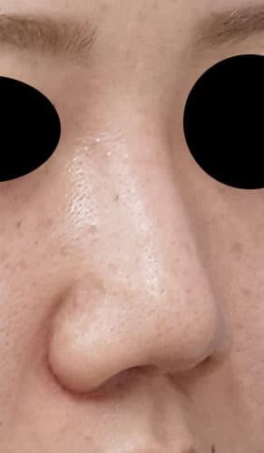 鼻尖縮小、鼻中隔延長、鼻柱基部下降、I型プロテーゼ 3ヶ月後 右斜めのAfterの写真