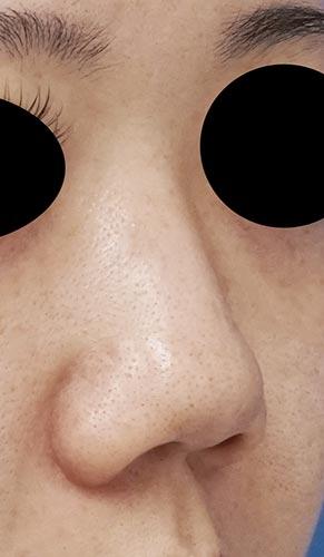 鼻尖縮小、鼻中隔延長、鼻柱基部下降、I型プロテーゼ 3ヶ月後 右斜めのBefore写真
